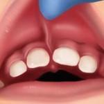 Laser Frenectomy Lip Tie