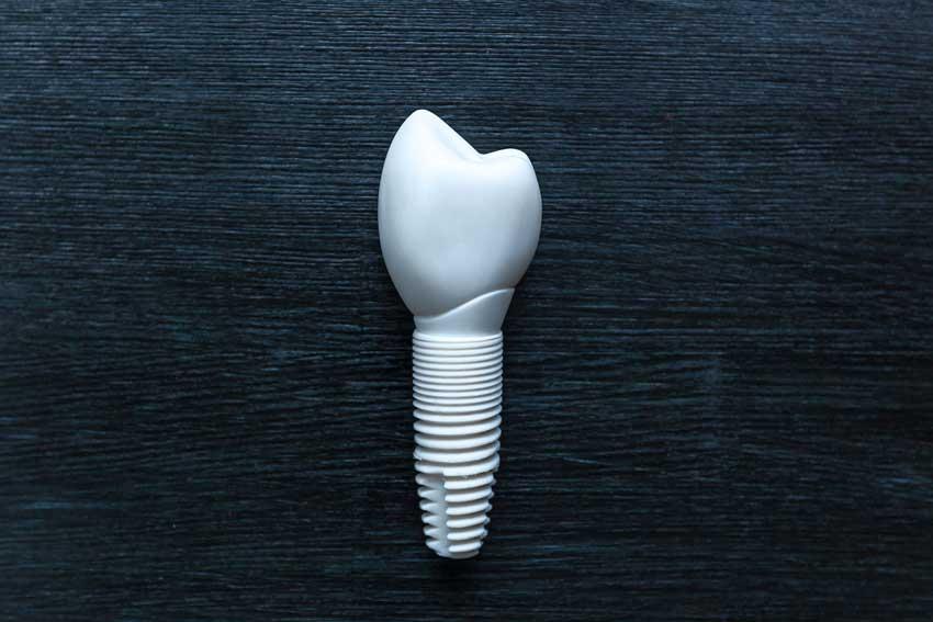 Ceramic Tooth Implant