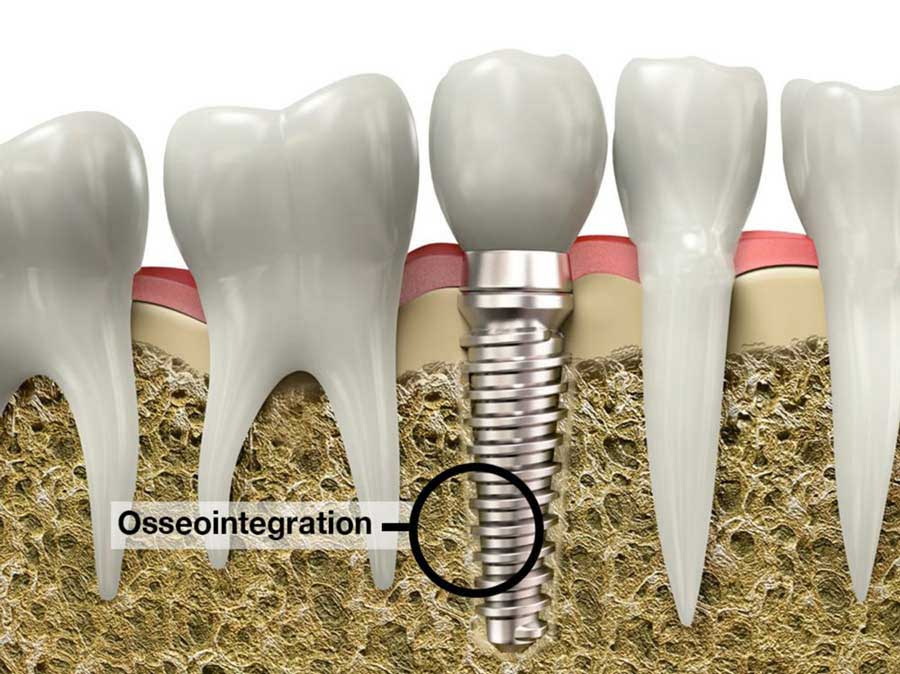 A failed dental implant often occurs if osseointegration doesn't happen