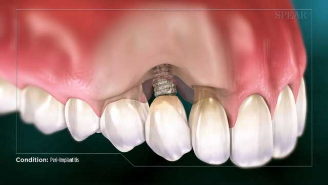 Peri-Implantitis causes tissue and bone loss ultimately leading to a failed dental implant